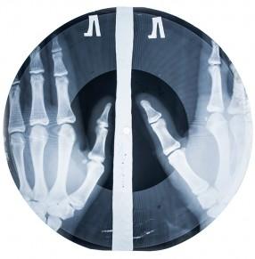 Bones-9455